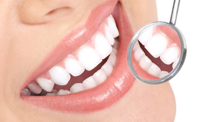 Excel Family Dental - Invisalign