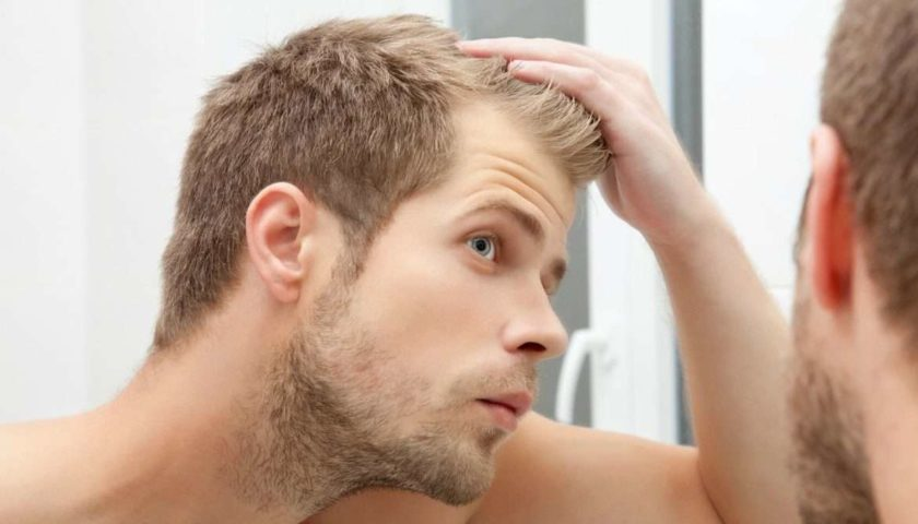 Hair Loss Herbal Treatment - Honest And Unbiased Review Of Hylix Lotion