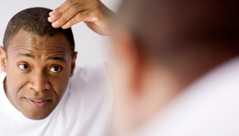 Preparing For Hair Transplant And Finding a Clinic in India