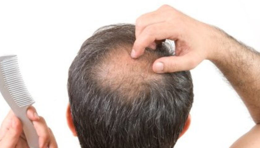 Various Scientific Evaluation of Hair Loss